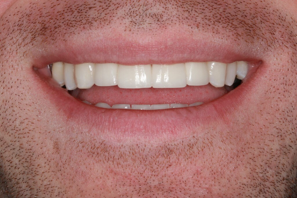 Before and After Smile After