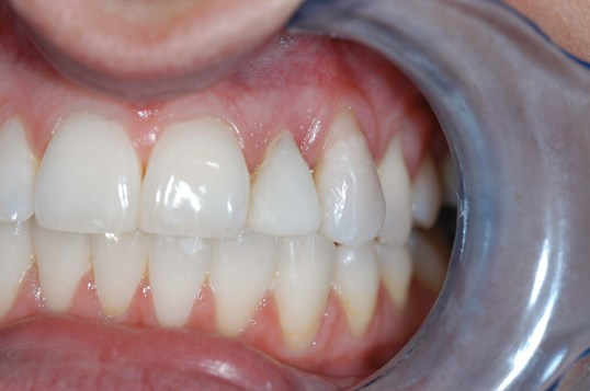 Close up of Dental Implant Before