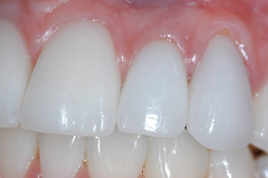 Close up of Dental Implant After