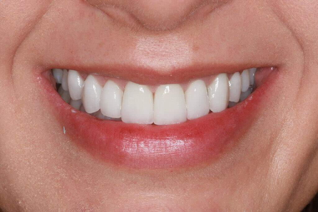 Before and After Teeth After smile