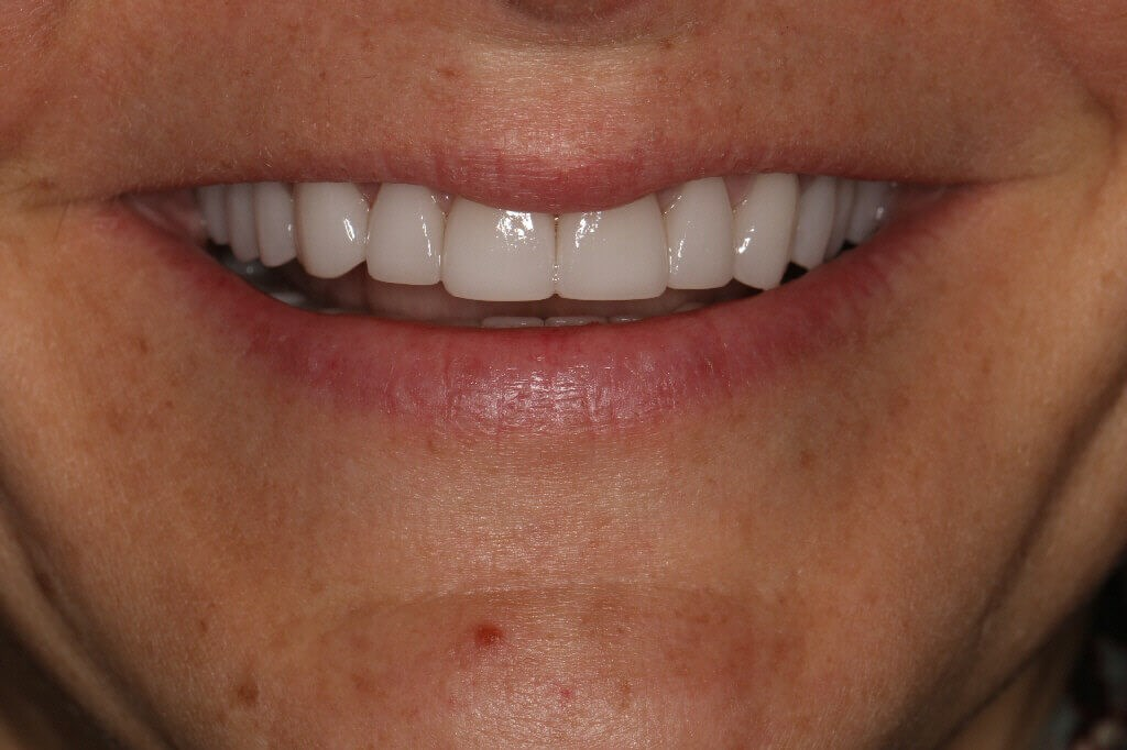 Before and After veneers After Veneers