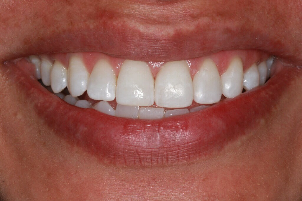 Before and After Teeth Bonding After smile bonding