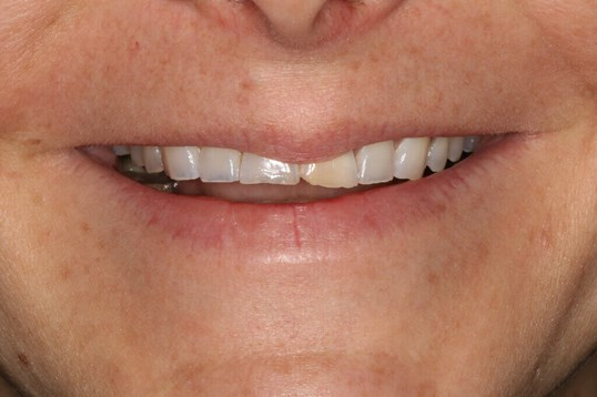 Before and After veneers Before Smile