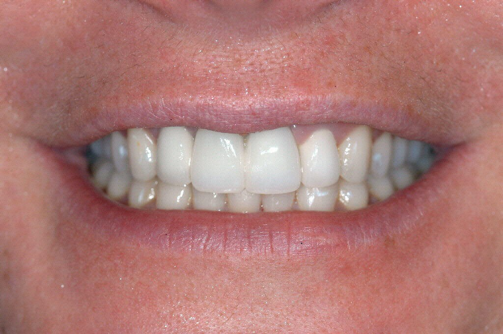 Before and After Dental Bridge After dental bridge