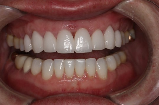 Before and After Close Up After Porcelain veneers