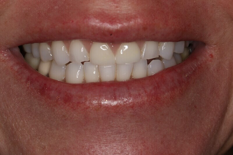Before and After Smile Before Smile Makeover