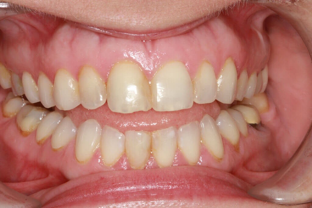 Before / After Dental Veneers Before smile