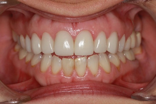 Before / After Dental Veneers After Dental Veneers