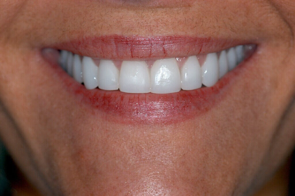 Before and After veneers After Porcelain dental veneers