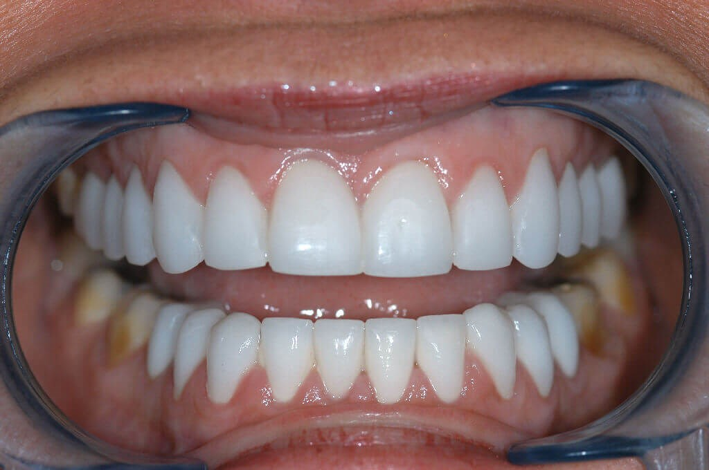 Before and After Close Up After upper and lower veneers
