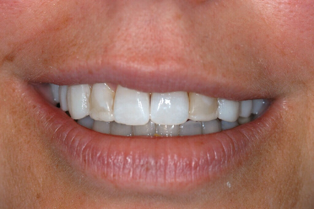 Before & After Dental Veneers Before Dental Veneers