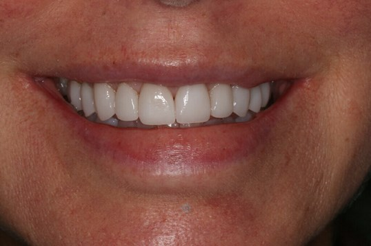 Before & After Dental Veneers After Porcelain Veneers
