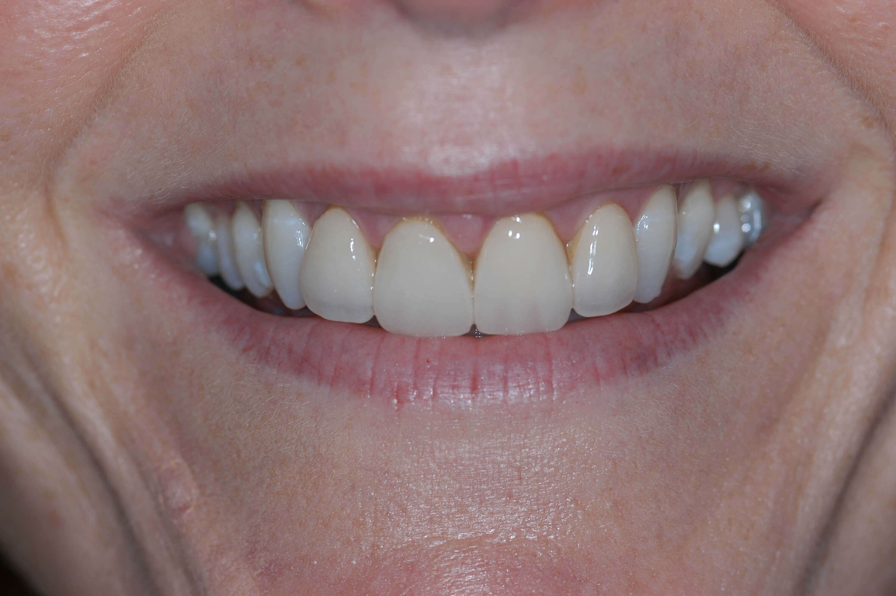 Before & After Dental Veneers Before 4 old veneers