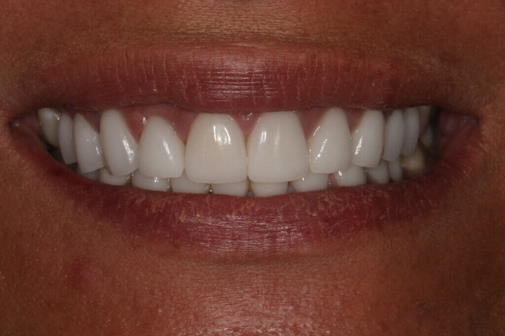 Before and After Veneers After Smile
