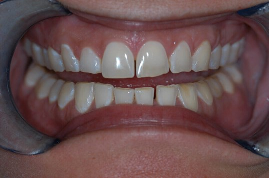 Closeup of Smile Makeover Before close up
