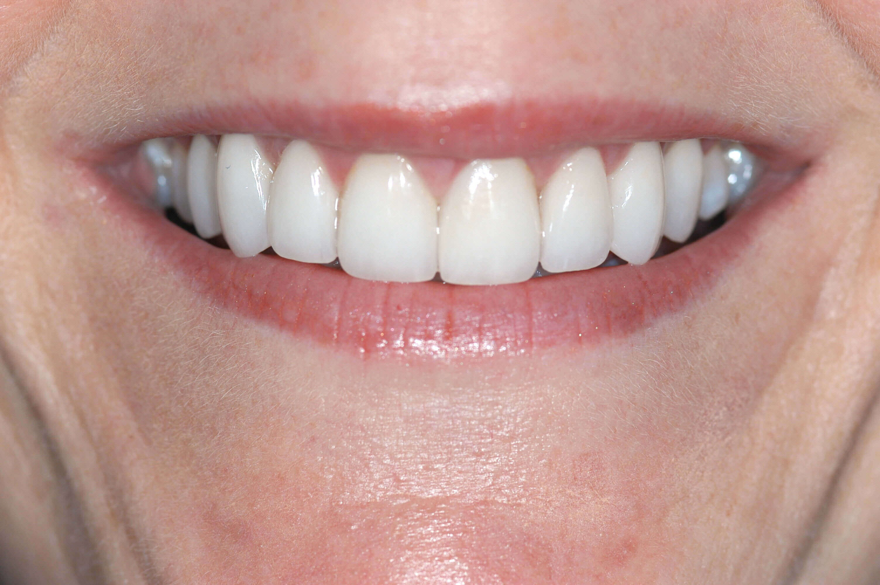 Before & After Dental Veneers After Smile Makeover