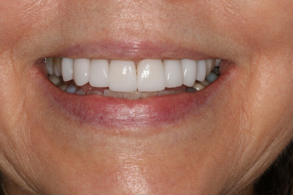 Before and After Smile Veneers After 8 Porcelain Veneers