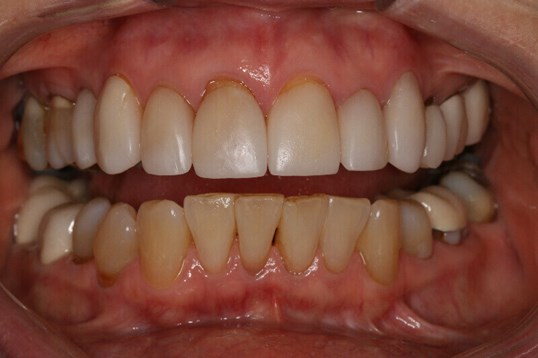Before & After Dental Veneers Before close up dental smile