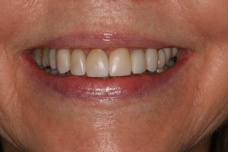 Before and After Smile Veneers Before Old veneers in place