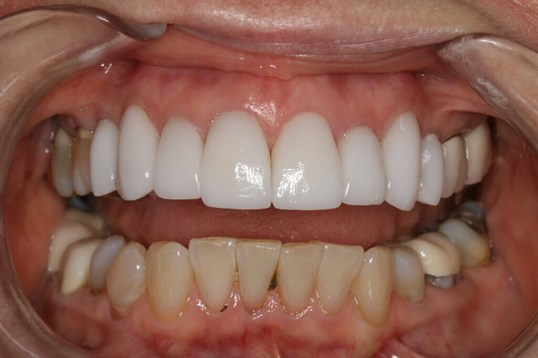 Before & After Dental Veneers After Porcelain veneers placed