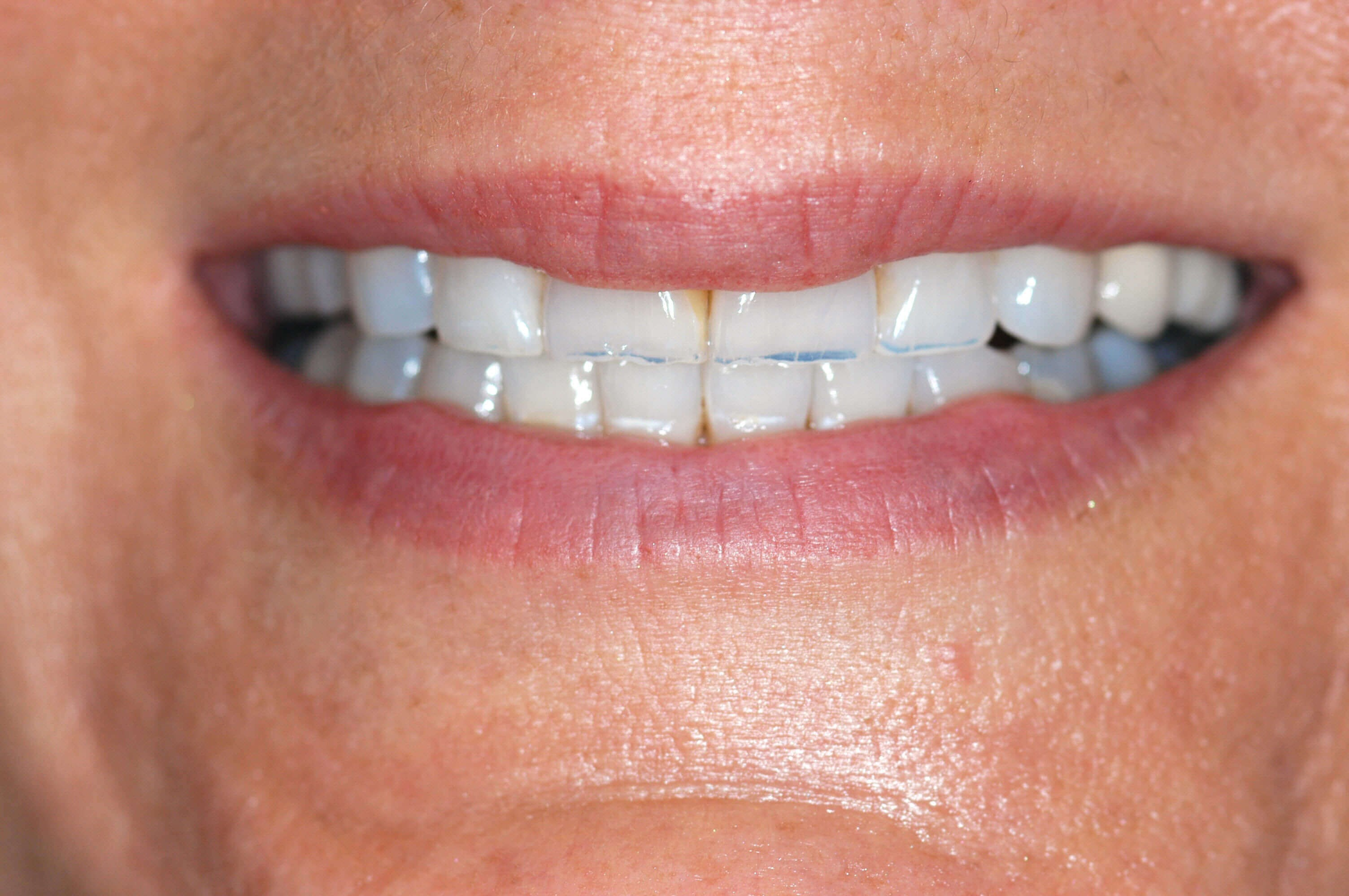 Before & After Dental Veneers Before Veneers