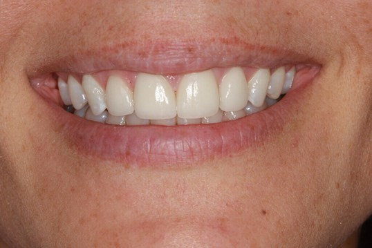 Before and After Smile Veneers After Four Porcelain veneers