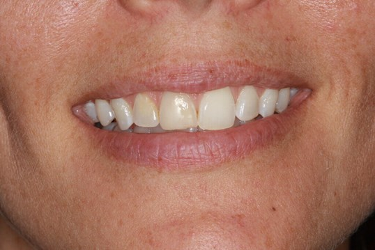 Before and After Smile Veneers Before teeth