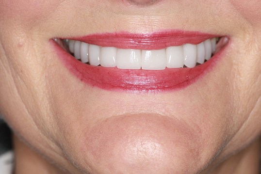 Before and After Smile After Porcelain Veneers