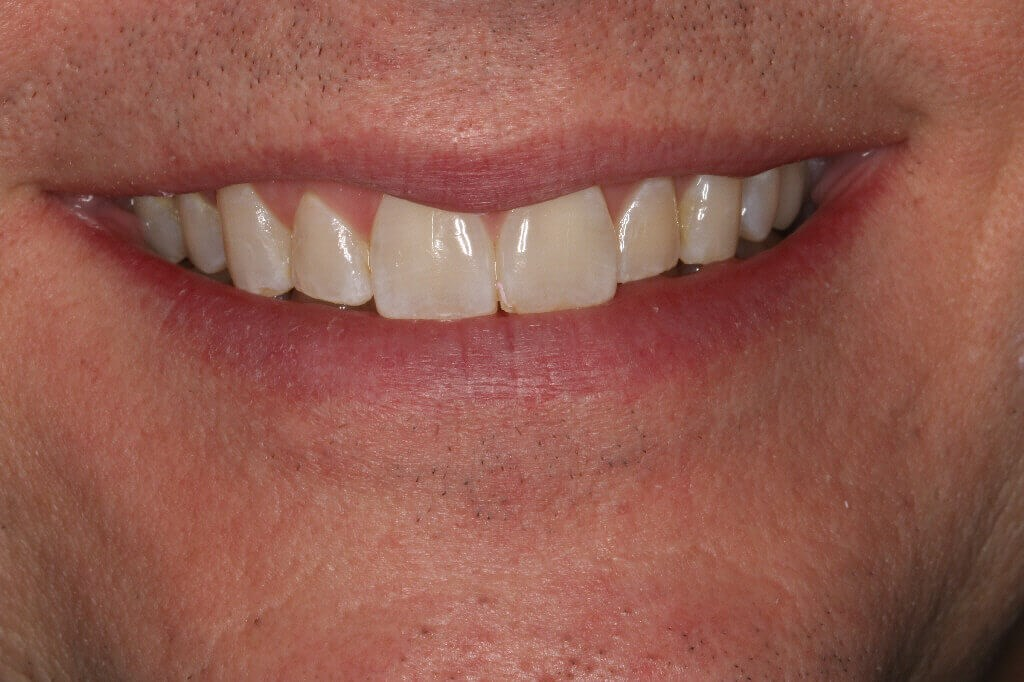 Before and After Smile Veneers Before Smile