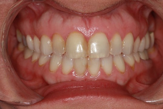 Before and After Veneers Before Veneers