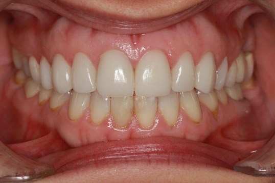Before and After Veneers After 8 Dental Veneers