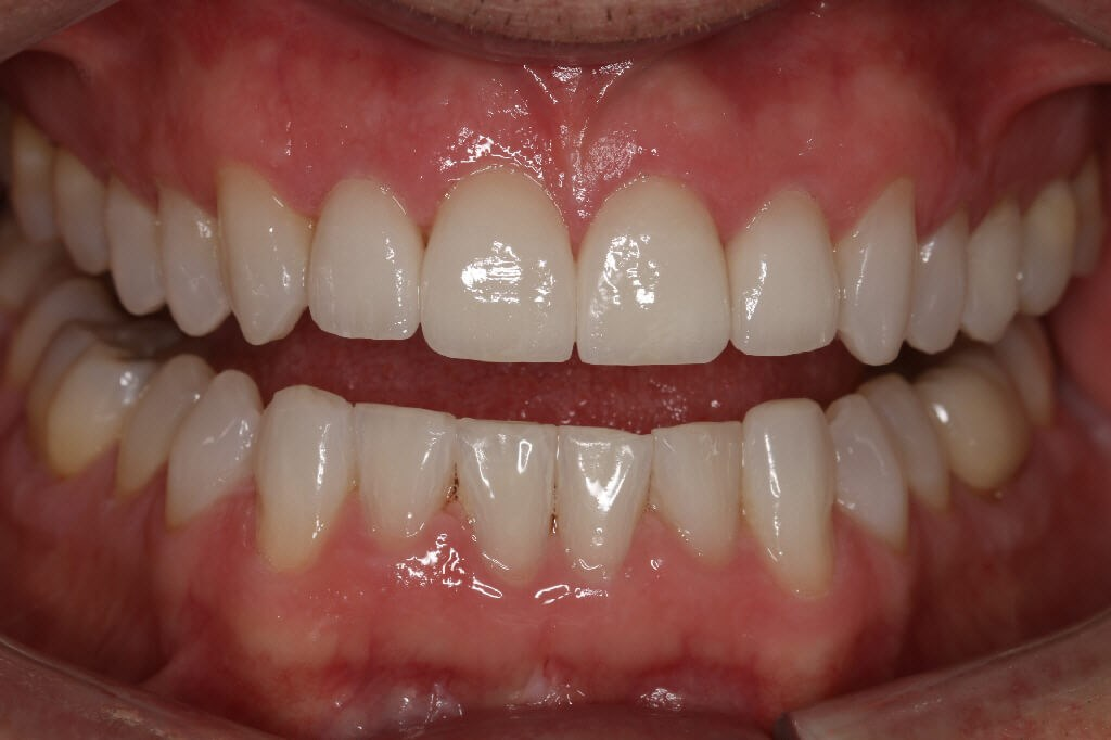 Before/After Porcelain veneers After closeup