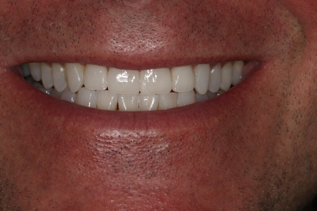 Before and After veneers After Smile 4 Porcelain veneer